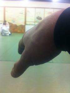 BJJ-skada blodsfylld hand